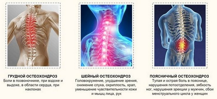 Остеохондроз грудного отдела позвоночника боль при глотании